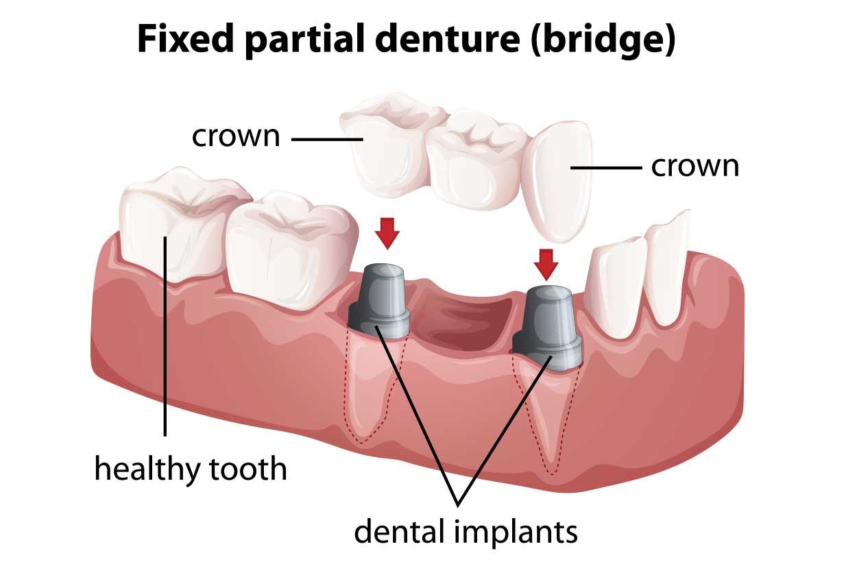 NE Calgary Fixed Partial Denture Bridge | Pathways Dental Clinic