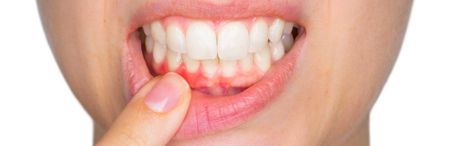 NE Calgary Periodontal Gum Therapy | Pathways Dental Clinic